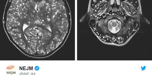 大脑中被发现有寄生虫,患有癫痫的少年不治身亡