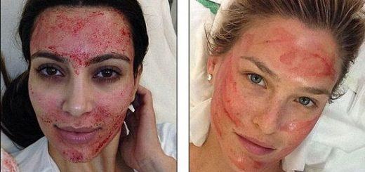"""新墨西哥两女子因做""""吸血鬼美容""""染艾滋,爱美也要当心!"""