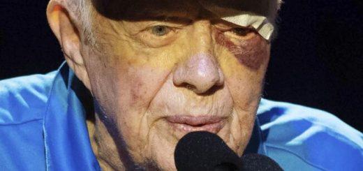 美前总统卡特因脑出血接受手术 上个月曾2次入院